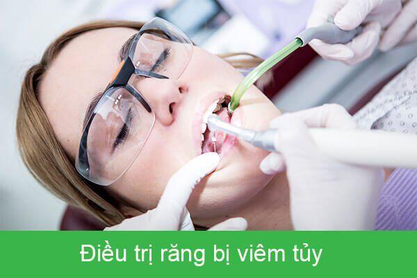 điều trị viêm tủy răng