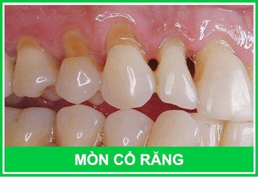 cổ răng bị mòn