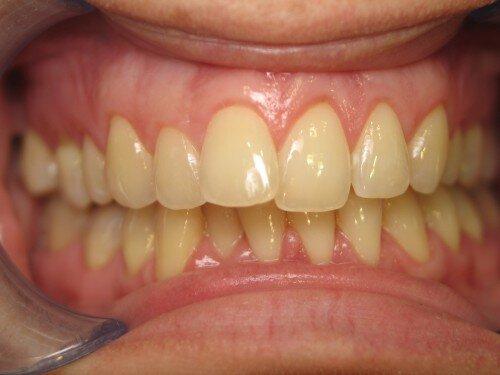 Cách phòng ngừa tình trạng mất màu răng từ bên trong