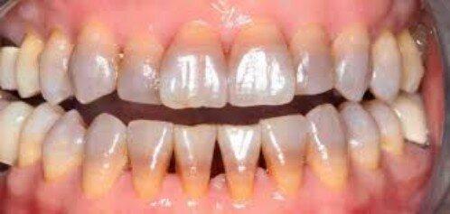 Nguyên nhân mất màu răng từ bên trong