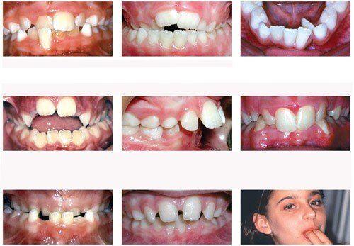 Khí cụ giúp răng mọc đúng vị trí khi răng sữa mất sớm