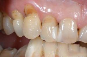 Nguyên nhân và cách điều trị mòn cổ răng