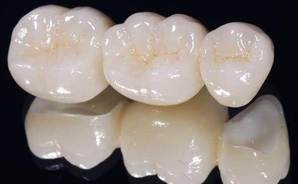 Nha Khoa làm răng sứ Cercon HT tốt nhất hiện nay tại TP.HCM
