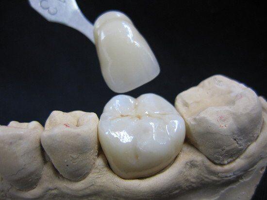 Nha khoa làm răng sứ Lava Plus uy tín quận 5