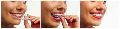 Nha khoa niềng răng uy tín khu vực Nam Bộ