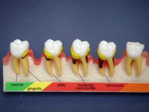 Nhận biết tình trạng bệnh qua biểu hiện của răng miệng