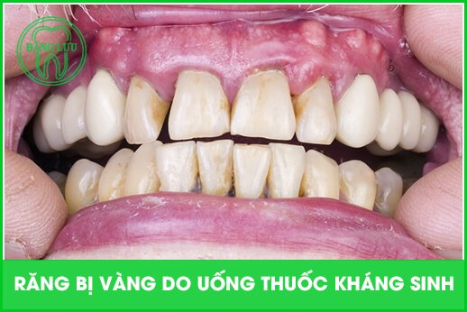 vàng răng do yếu tố nội sinh