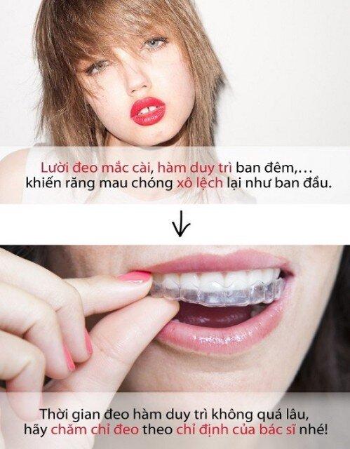 Nhiệm vụ của hàm duy trì sau niềng răng