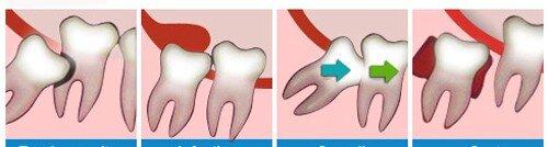 Nhổ 2 răng khôn cùng lúc có được không ?