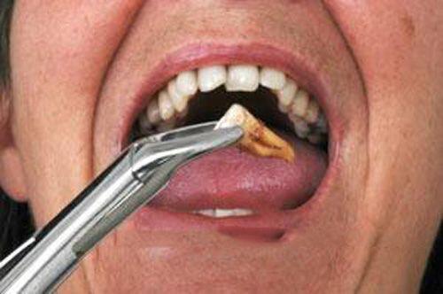 Nhổ răng hàm không đau 3