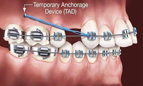 nhổ răng khi chỉnh nha có tác dụng gì