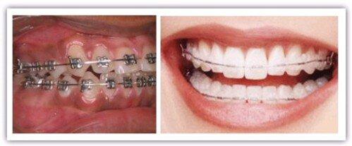 Răng nanh mọc ngầm nên niềng hay nhổ bỏ ?