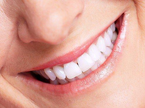 Bọc răng sứ titan có ưu điểm gì? 1