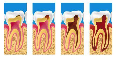nhổ răng sâu ở đâu tốt và uy tín