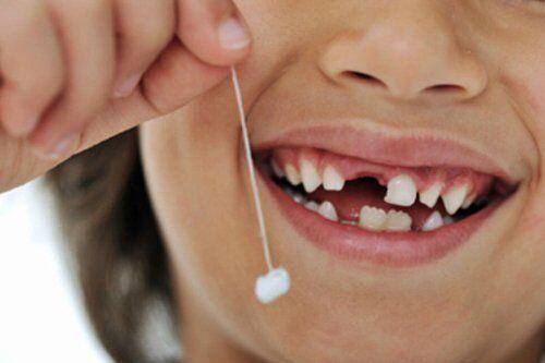 Nhổ răng sữa sớm có hại không ?
