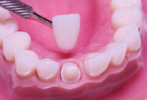 Những ảnh hưởng của răng chuột tới khuôn miệng