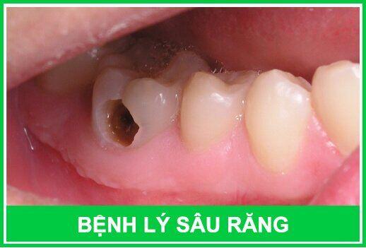 Những bệnh lý răng miệng thường gặp nhất