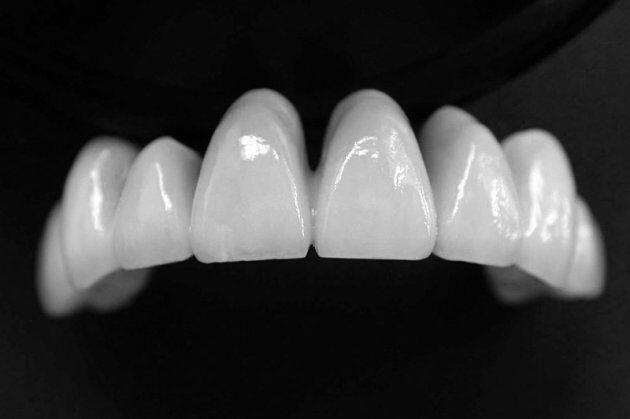 Những biến chứng bọc răng sứ Cercon cần lường trước?