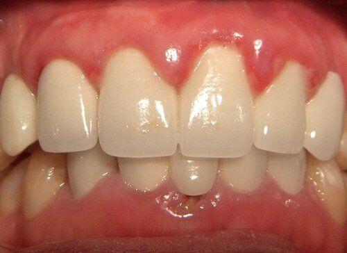 Những biến chứng bọc răng sứ Cercon HT cần lường trước?
