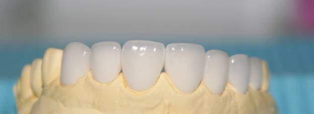 Những biến chứng bọc răng sứ Zirconia cần lường trước?