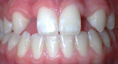 Giải pháp điều trị thưa răng hiệu quả