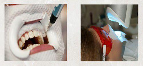 Các cách làm trắng răng tại nha khoa hiện nay 2