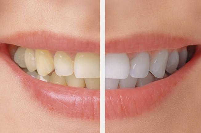 những câu hỏi thường gặp khi tẩy trắng răng