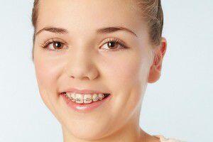 Những Chú Ý Sau Khi Niềng Răng