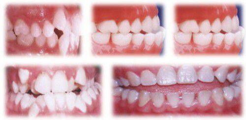 Các dạng điển hình của mọc răng không thẩm mỹ