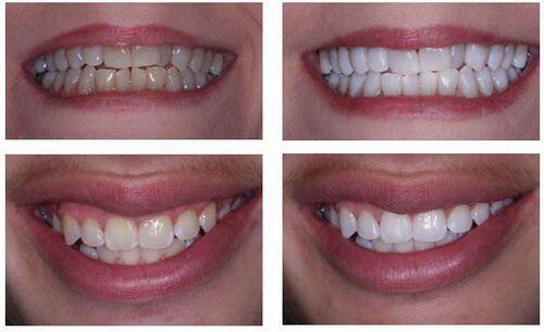 Sự khác nhau trước và sau khi tẩy trắng bằng laser
