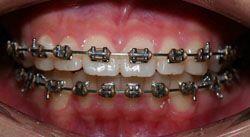 Những điều cần biết về chỉnh hình răng miệng