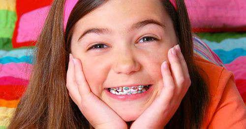 Những điều cần chú ý khi niềng răng cho trẻ em