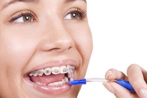 Những điều nhất định phải biết khi niềng răng