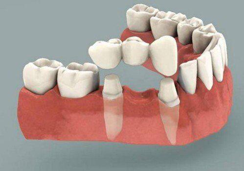 Giải pháp cầu răng cho trường hợp mất răng