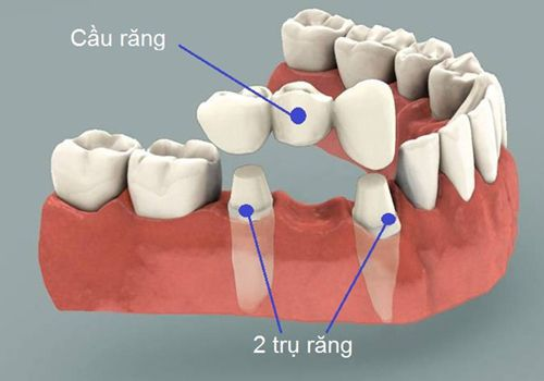 Những hạn chế của phương pháp cầu răng