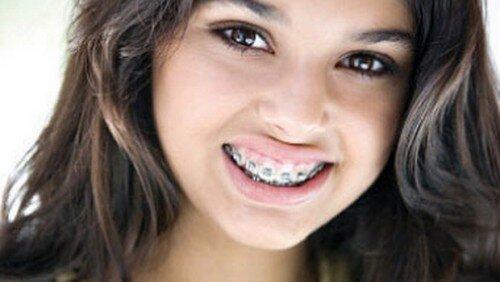 Những kiểu răng khi niềng không phải nhổ