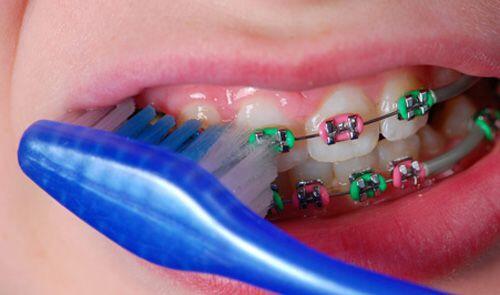 Những lưu ý đề phòng cho trẻ khi đang niềng răng