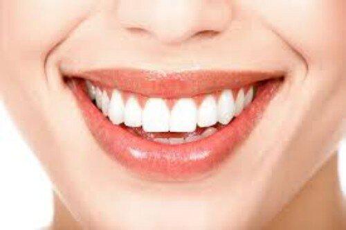 Tìm hiểu tẩy trắng răng