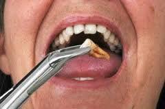 Những nguyên nhân cần nhổ răng