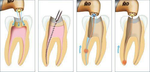 Những nguyên nhân làm sưng chân răng