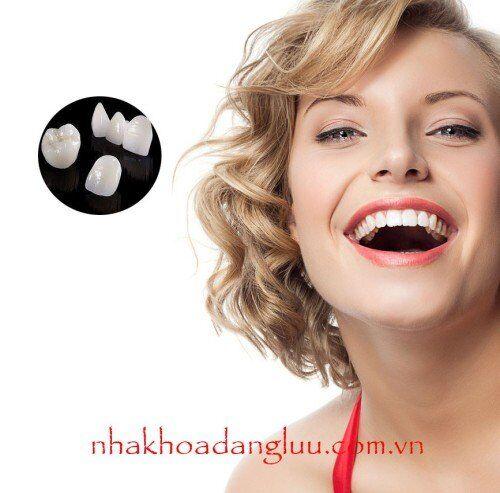 Bọc răng sứ nguyên hàm có tốt không? 3