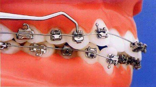 Tuổi tác có ảnh hưởng đến kết quả niềng răng ?