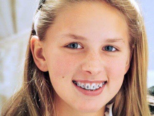 Những sự cố có thể gặp khi niềng răng mắc cài