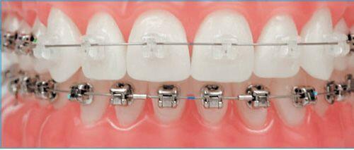 Niềng răng mắc cài tự đóng -1