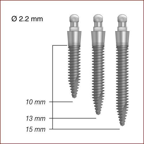 Mini-implant là gì ?