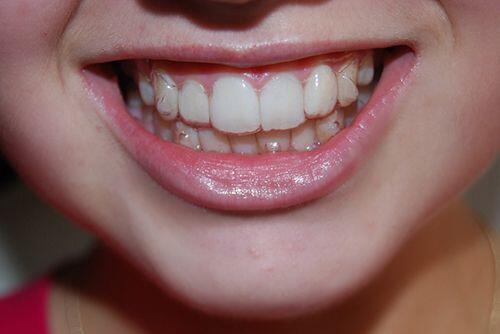 Niềng răng bằng mắc cài vô hình