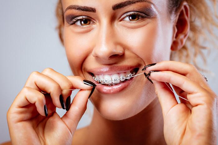 Những vấn đề thường gặp khi niềng răng mắc cài