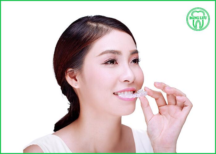 niềng răng 3D