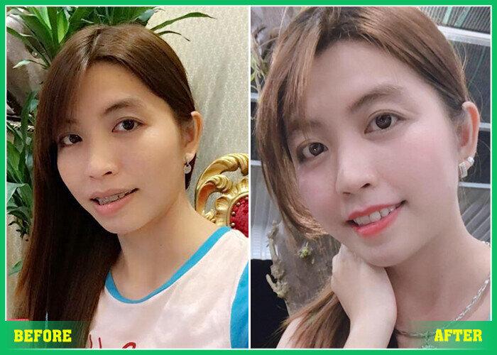 nieng rang 3d clear