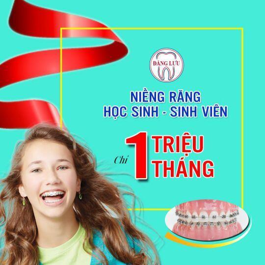 NIỀNG RĂNG HS & SV CHỈ 1 TRIỆU/1 THÁNG
